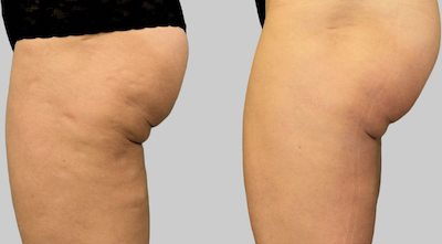 Skin Tightening Fat Loss in Lancashire CAREFORSKIN
