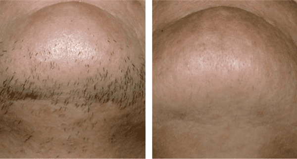 Laser Hair Removal in Clitheroe, Burnley, Lancashire