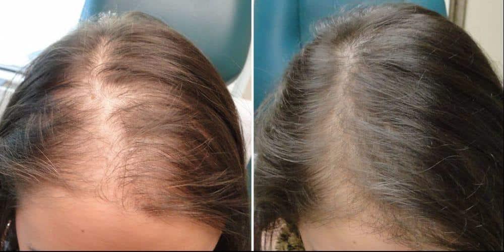 Hair Loss Clitheroe, Burnley, Lancashire
