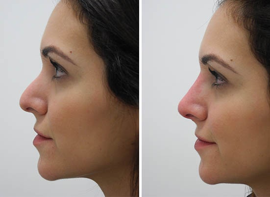 Rhinoplasty in Burnley, Clitheroe, Lancashire CAREFORSKIN