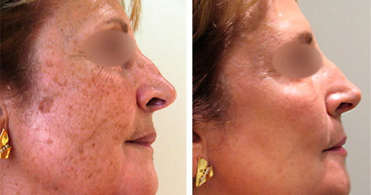 Pigmentation Treatment in Lancashire - CAREFORSKIN AESTHETICS