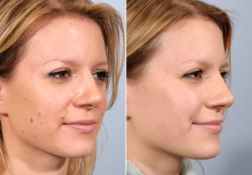 mole removal in Lancashire CAREFORSKIN