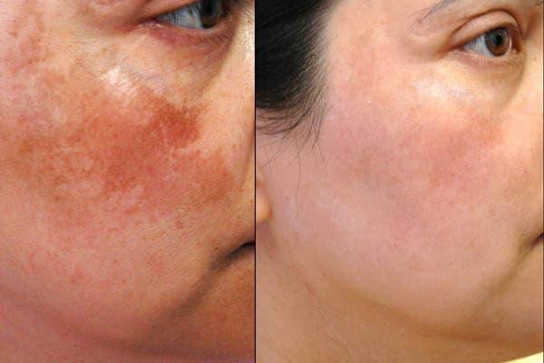 Pigmentation Skin Clinic Lancashire