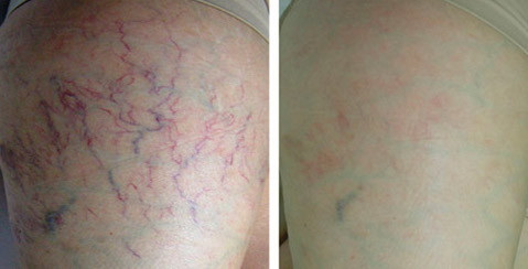 Thread Vein removal in Lancashire CAREFORSKIN