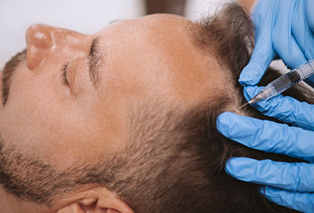 non-surgical hair restoration. hair loss treatment in lancashire