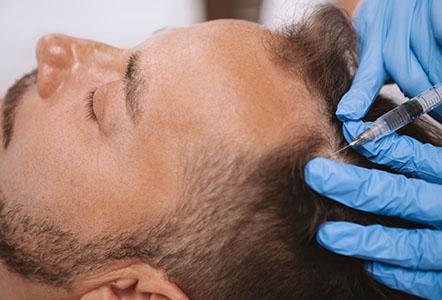 non-surgical hair restoration. hair loss treatment in lancashire